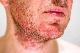 Dermite séborrhéique et aromathérapie